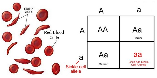 Is sickle cell anemia sex-linked pics 91